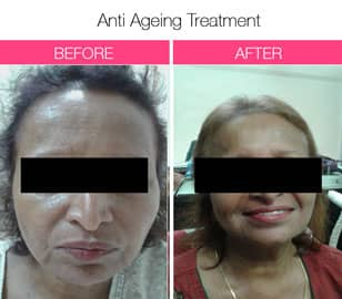anti aging treatment In mumbai