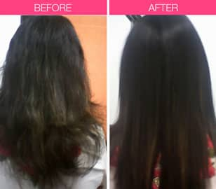 Hair fall treatment In mumbai