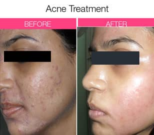 best dermatologist for acne